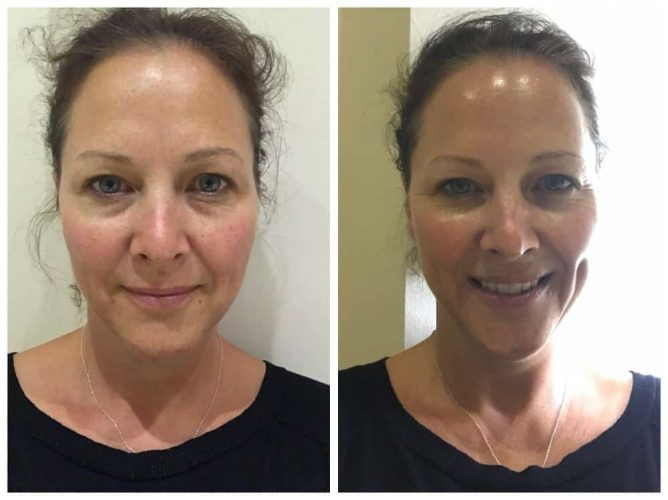 before and after an Image Skincare peel